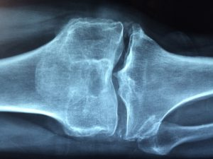 knee-1406964_1280